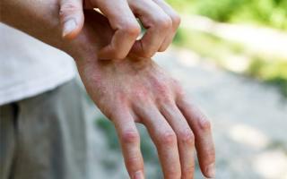 Chuyên gia cảnh báo dấu hiệu lạ trên cơ thể của bệnh nhân mắc Covid