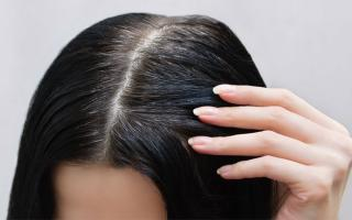 Đừng nghĩ tóc bạc sớm là do máu xấu, có thể bạn đang mắc 1 trong 5 loại bệnh này